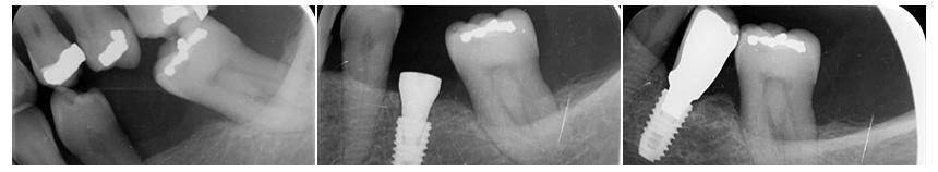Dental Implant ex-ray