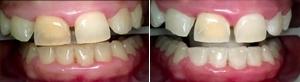 Chair Teeth Whitening
