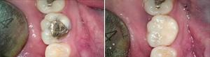 Removal of Amalgam and Restoring