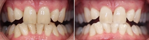 ZOOM Inchair Teeth Whitening