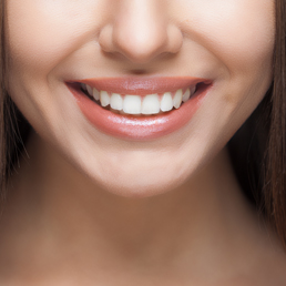 Teeth Whitening Experts in Newcastle And Singleton