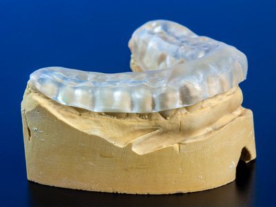 Occlusal Splint CALL US NOW