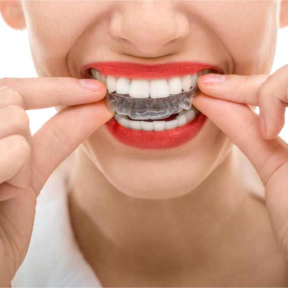Invisible Braces Tru-Line in Cardiff And Singleton