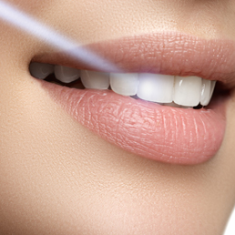 Laser Dental Treatments