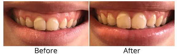 Gingivectomy-gum reduction page