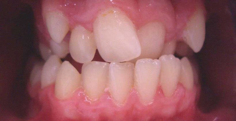 Gum Lifts Reshaping And Contouring Newcastle Cardiff