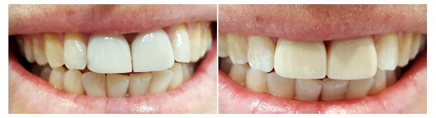 Porcelain Veneers Newcastle - Cardiff - Singleton - Teeth Veneers